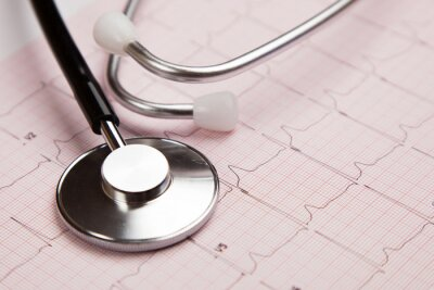 Canvastavlor Medicinsk rapport och kardiogram